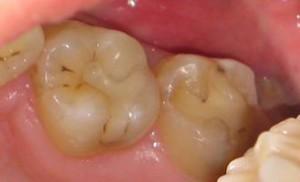 Кариес на ранее запломбированном зубе