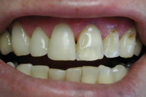 Как очистить зубы от кариеса — Зубы