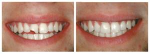 В каких случаях удаляют зуб если остался только корень показания и этапы экстракции последствия операции