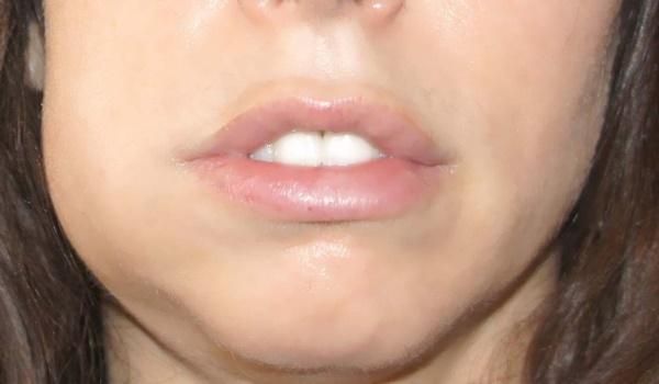 Отек после удаления зуба – сколько держится припухлость и как снять отек после удаления зуба