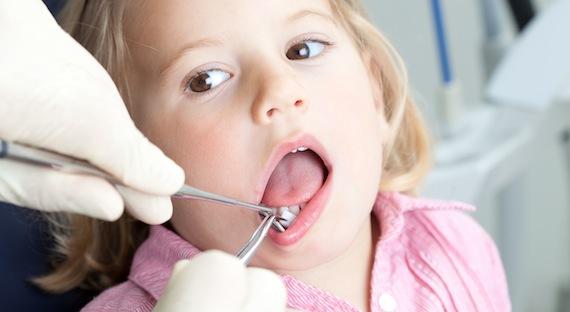 У ребенка черная точка на молочном зубе