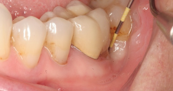 После удаления зуба мудрости абсцесс