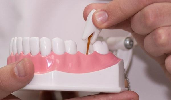 Какой врач вставляет зубы и коронки — Болезни полости рта
