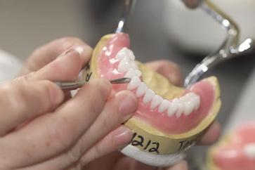 Протезирование микроимплантами в ортодонтии виды фиксации зубных протезов и этапы установки