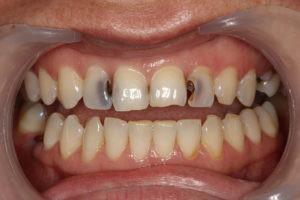 Как лечить пришеечный кариес на передних и жевательных зубах и больно ли это?