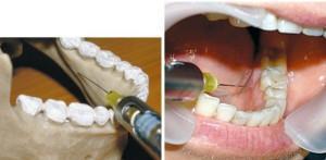 Интралигаментарная анестезия в стоматологии — Болезни полости рта