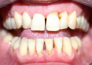 Стразы и скайсы на зубы — установка зубных украшений
