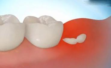 Кариес на зубе мудрости лечить или удалить