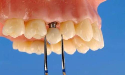Что лучше металлокерамика или пластмассовые зубы