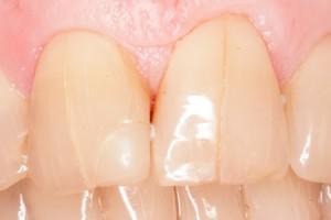 Сонник зубы выпадают без крови целыми много