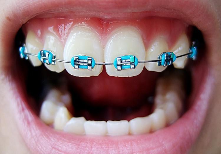 Для чего нужны брекеты на зубах