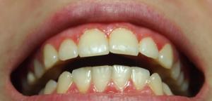 Лесной бальзам ополаскиватель при беременности — Болезни полости рта