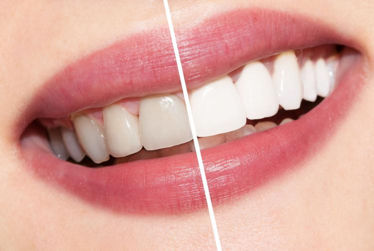 1teeth-whitening
