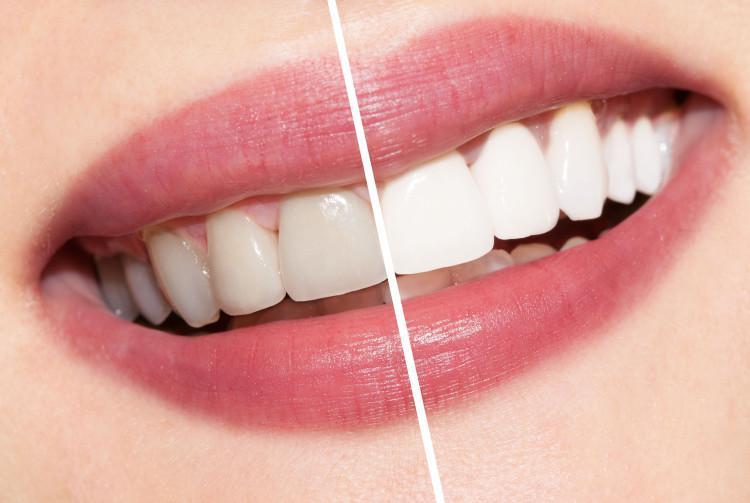 Покрытие зубов фторлаком (белой эмалью) — что это такое. Жми!