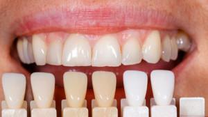 Венеры зубы что это такое