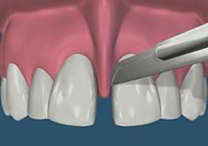 Что делать если болит уздечка верхней губы. Разрыв уздечки: лечение патологии верхней и нижней губы. Лечение разрыва укороченной уздечки
