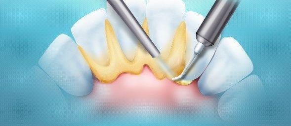 На чм держится зуб Узнаем про строение и функции тканей пародонта классификацию заболеваний и их профилактику