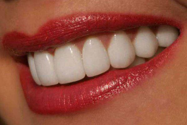 Чистка зубов содой: польза или вред