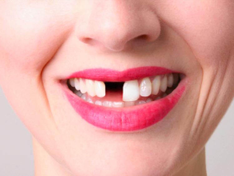 Сонник: выпал передний зуб без крови во сне