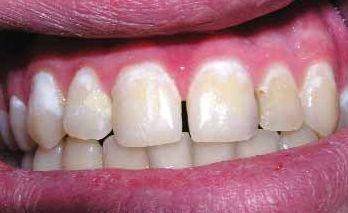 Кальцинирование зубов у детей
