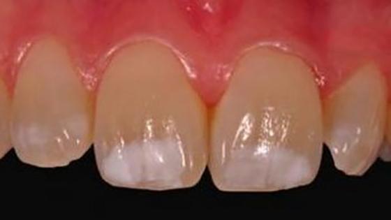 Белые пятна на зубах у детей и взрослых, меловидные пятна на молочных зубах