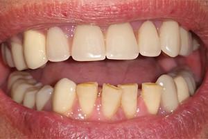 Выпадают зубы - что делать если выпал зуб