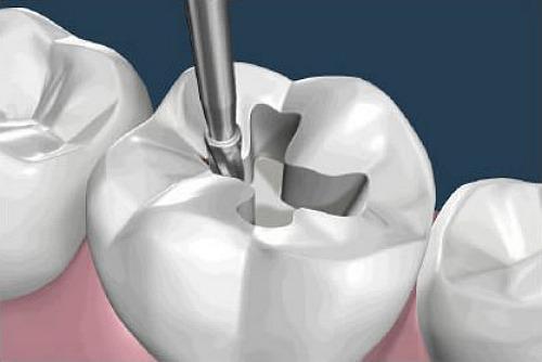 После лечения кариеса зуб реагирует на холодное