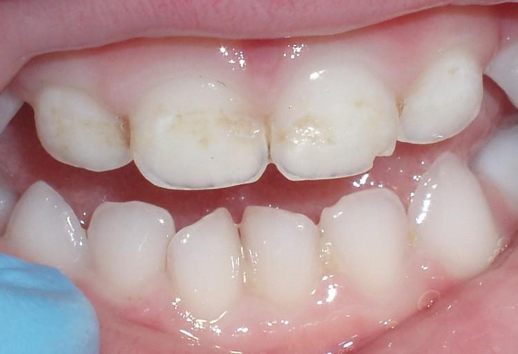 После фторирования зубов сколько времени нельзя принимать пищу