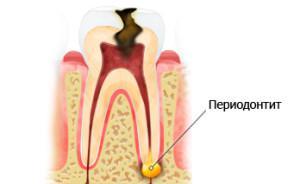 Зуб шатается и болит при надавливании