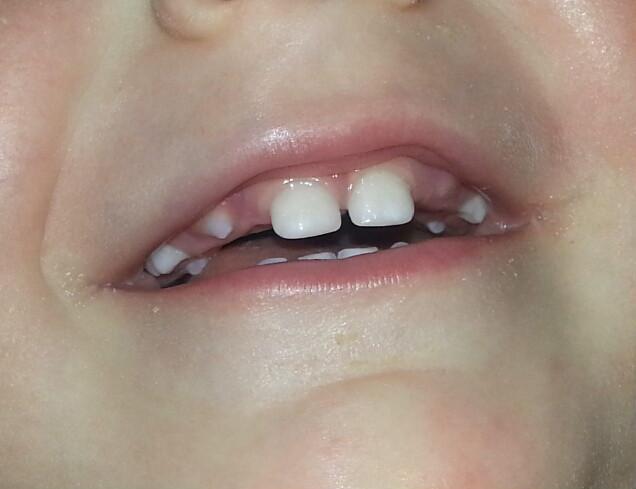 Лезут клыки у ребенка симптомы