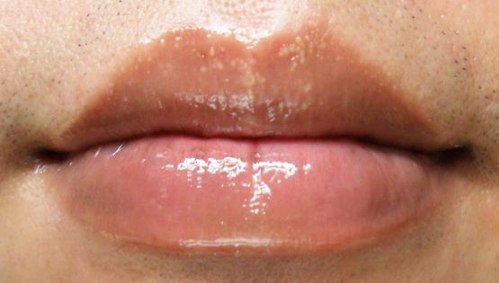 Белые точки на губах под кожей: как убрать точки на коже губ