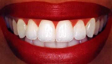 Как восстановить эмаль зубов - восстановление эмали зубов в Москве, цены на покрытие зубов эмалью, стоимость укрепления