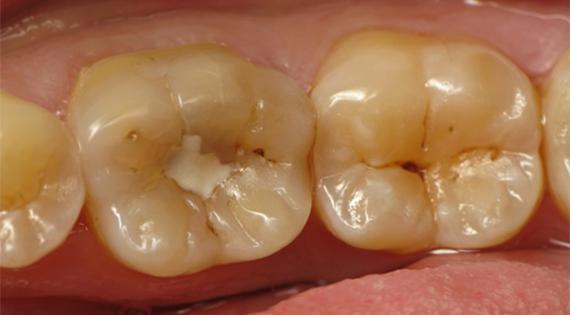 Почему появляется кариес под пломбой ЗубнойМастер
