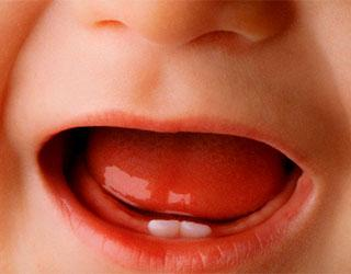 Понос при прорезывании клыков — Зубы