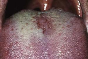 Опасно ли воспаление языка глоссит