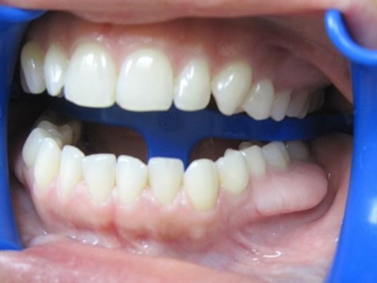 Удаление экзостозов – альвеолотомия в стоматологии после удаления зуба