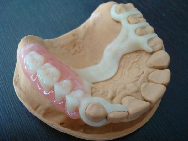 Ацеталовые зубные протезы — Зубы
