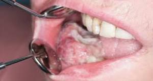 Рак челюсти - симптомы, лечение, отзывы, диагностика рака верхней и нижней челюстей в Онкологическом центре TomoClinic