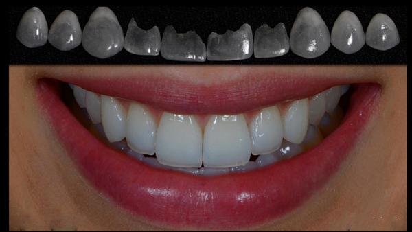 Сколько стоят виниры на зубы в вологде