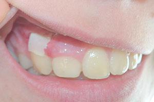 Дренаж в десне (фото): как выглядит разрез после удаления зуба, при флюсе?