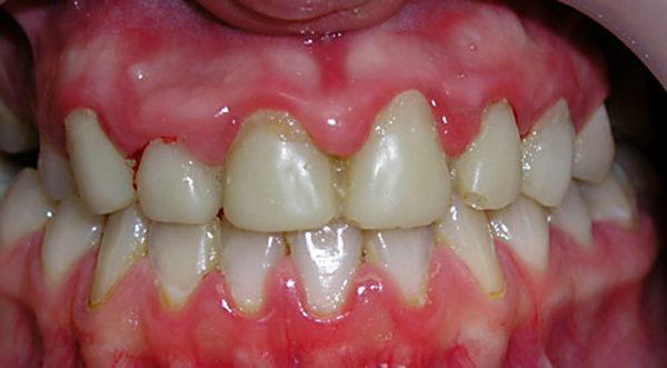 Воспаление корня зуба - лечение и симптомы. Чем опасно воспаление корня зуба