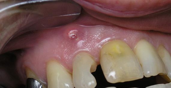 Гранулема зуба : лечение в клинике и народными средствами 56