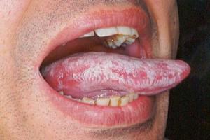 Белые точки на языке у взрослого: основные причины и лечение