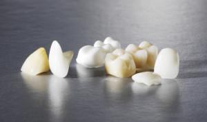 Виды коронок на жевательные зубы
