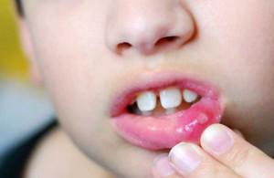 Сколько дней лечится стоматит у взрослых — Зубы