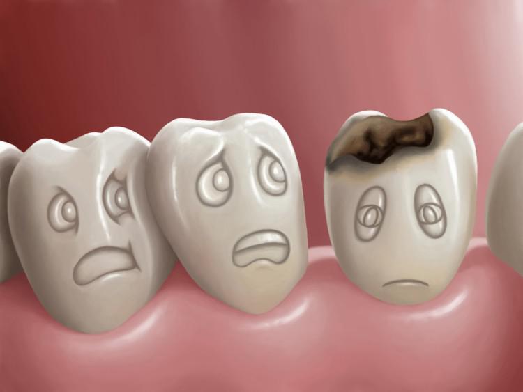 Что будет если не лечить кариес зубов — Болезни полости рта