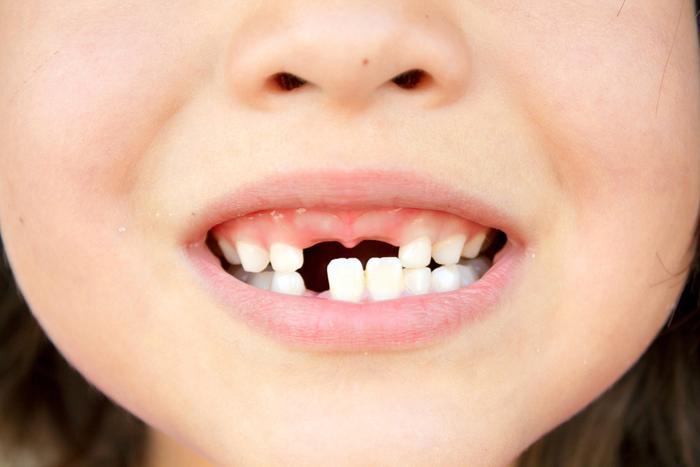 В каком возрасте у детей меняются молочные зубы на коренные