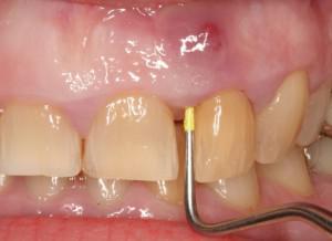 Флюс зубной: как быстро снять опухоль и отёчность щеки