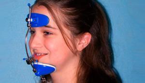 Ортодонтические аппараты: классификация конструкций по принципу действия