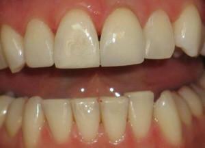 Отбеливание мертвого зуба: можно ли отбелить коронки и пломбы